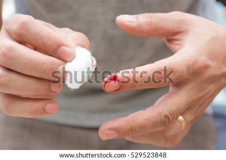 Index Finger Accident Work Use Cotton Stock Photo Royalty Free