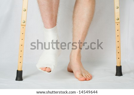 The person with plaster on a foot stands on a floor - stock photo