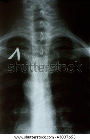 the xray photo of a human spine - stock photo