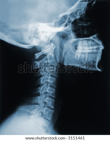 This is an X-ray of the neck - stock photo