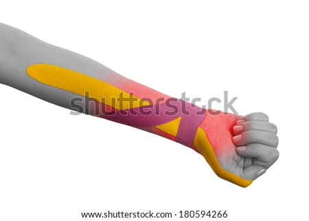 """This kind of taping is called """"Kinesiotape"""". Its purpose is to detonisize the muscle to reduce pain. In some cases you can also tonisize the muscle. - stock photo"""