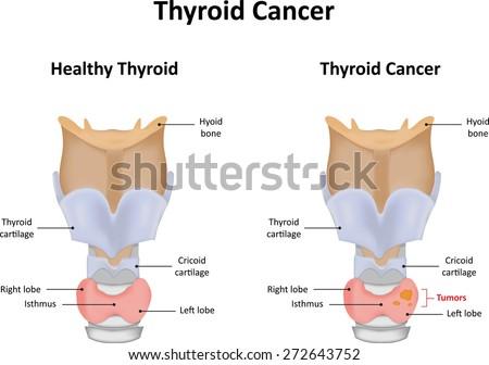 Thyroid Cancer - stock photo