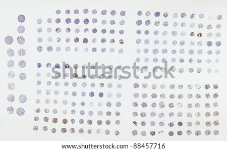 Tissue Microarray - a pathology technique to screen muliple tissue samples for biomarkers especially cancer prognostic markers on biopsy samples. - stock photo