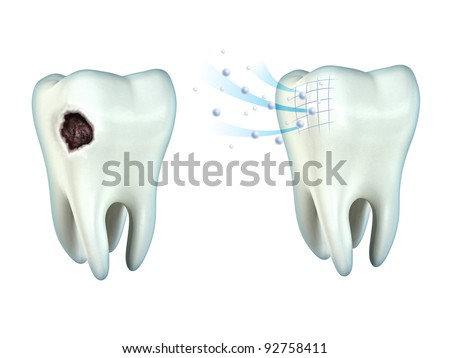 Tooth cavity and tooth remineralization. Digital illustration, clipping path included. - stock photo