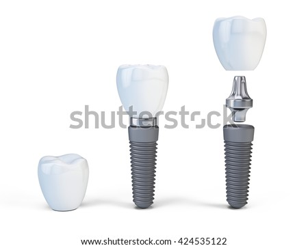 Tooth human implant isolated on white. 3d render - stock photo