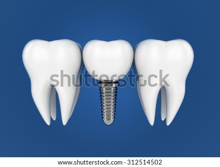 Tooth implant. Dental Concept. 3d illustration - stock photo
