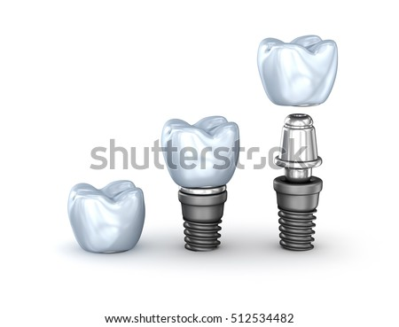 Tooth Implants set isolated on white background 3D illustration