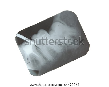 tooth x-ray isolated on white - stock photo