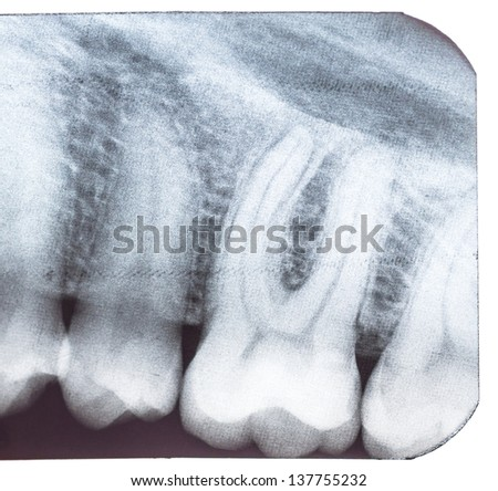 Tooth x-ray isolated on white background. Macro. - stock photo