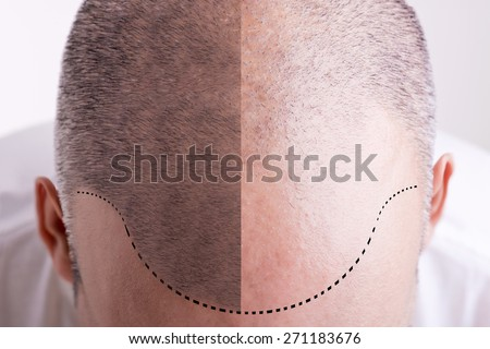 Top view of a men's head with a receding hair line - Before and After - stock photo