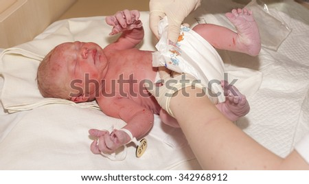 treatment of newborn - stock photo