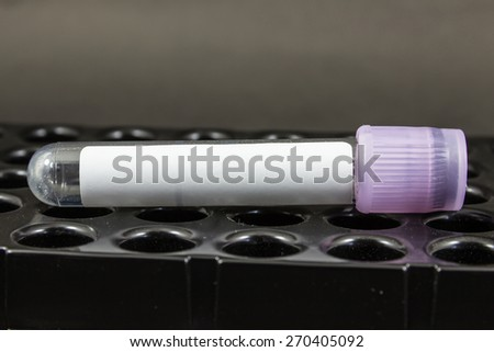 Tube blood collection for hematology laboratory. - stock photo