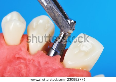 tweezers holding dental implant implanted in jaw bone - stock photo