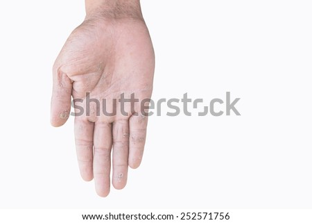 two male palms with eczema isolated on white background - stock photo