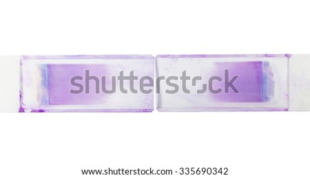 Two Slide  blood  smear. - stock photo