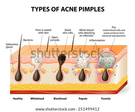 Types of acne pimples. Healthy skin, Whiteheads and Blackheads, Papules and Pustules - stock photo