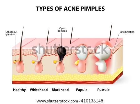 macule acne - photo #31