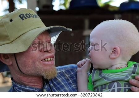 UKEREWE - TANZANIA - JULY 2, 2015: Unidentified albino father and son on July 2, 2015 in Ukerewe, Tanzania. Many traditional healers have been arrested recently in Tanzania because of albino murders - stock photo