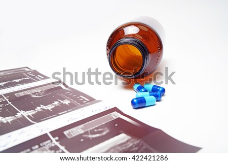 Ultrasound pictures,medicine,bottle, isolated on white background. - stock photo