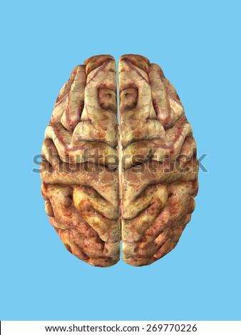 Unhealthy Brain: View from top featuring frontal lobe, parietal lobe, occipital lobe and temporal lobe - stock photo