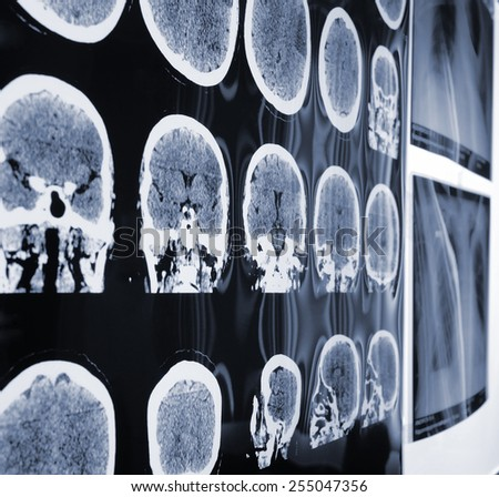 Unusual view of the MRI, X-ray images of the patient during discussion - stock photo