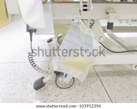 Urine bag or pee bag beside bed in hospital, urinary catheter (Foley Catheter) - stock photo