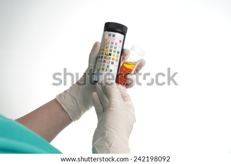 Urine test stripes examined by a nurse. Lab sample      - stock photo