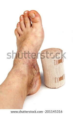 Varicose veins and bandage. Isolated on white background