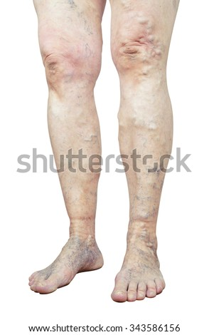 Varicose veins isolated on white