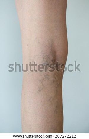 Varicose veins on a leg - stock photo
