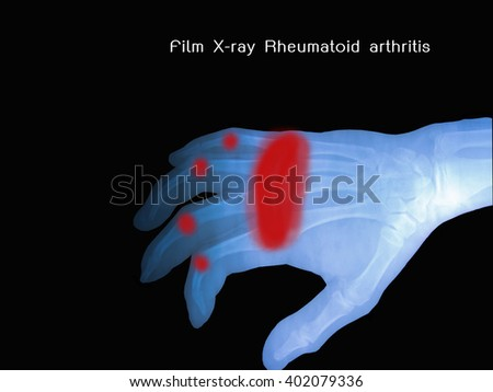 View of x-ray film show normal human's hand right. - stock photo