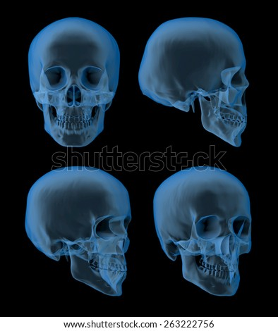 Views of a human skull, x-ray picture, front-, side views