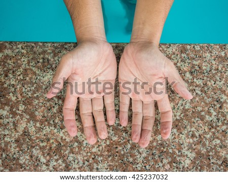 withered hands after swimming for a long time. - stock photo