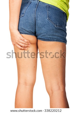 woman check cellulite at thigh - stock photo