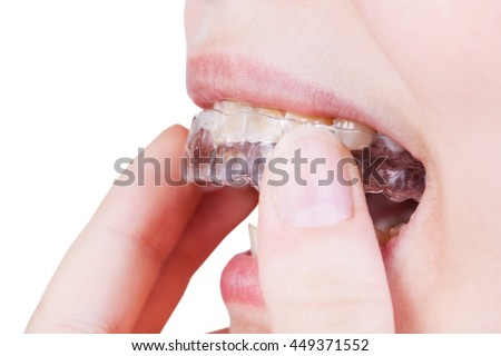 woman fixes clear aligner on teeth for orthodontic correction of bite isolated on white background