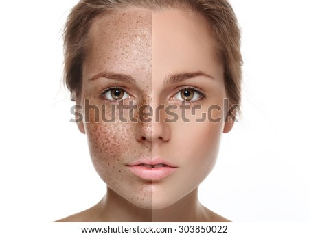 Woman freckle half-face happy young beautiful studio portrait  healthy skin half - stock photo