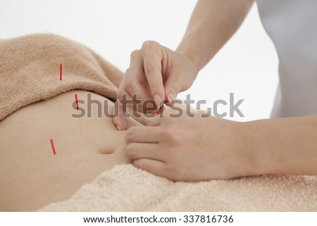 Woman hit the acupuncture to stomach for the health - stock photo