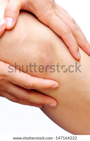 woman holding sore leg - stock photo
