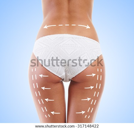 Woman in white panties with arrows on her legs. Cellulite removal concept. - stock photo
