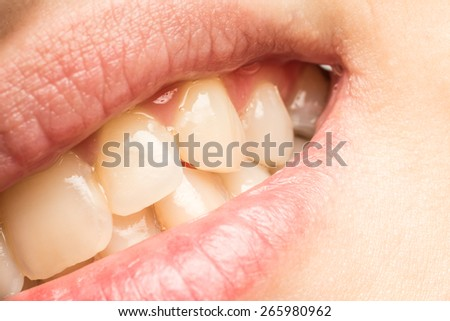 Woman Natural Lips And Teeth Macro