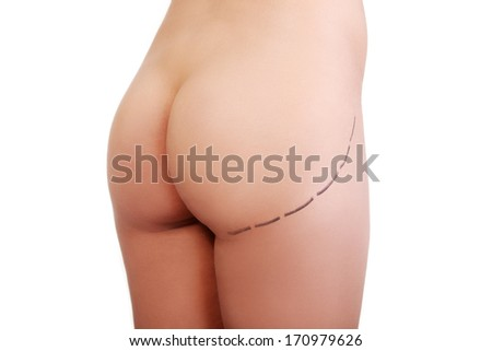 Woman's buttock prepared to plastic surgery , isolated on white - stock photo
