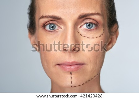 Woman's face with correction lines drawn for lifting procedure in surgery - stock photo