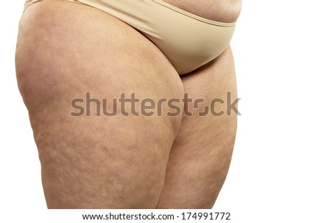 Woman showing her cellulite - stock photo