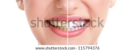 woman teeth and smile, close up, isolated on white, whitening treatment - stock photo
