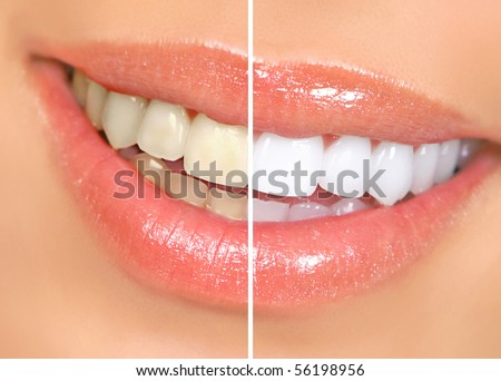 woman teeth before and after whitening. Over white background - stock photo
