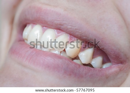 Woman teeth with smile