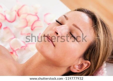 Woman undergoing acupuncture treatment with a line of fine needles inserted into the skin of her forehead - stock photo
