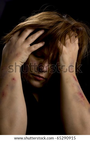 Woman - victim - stock photo