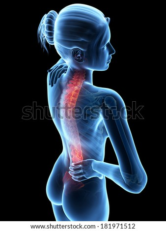 woman with acute pain in the back