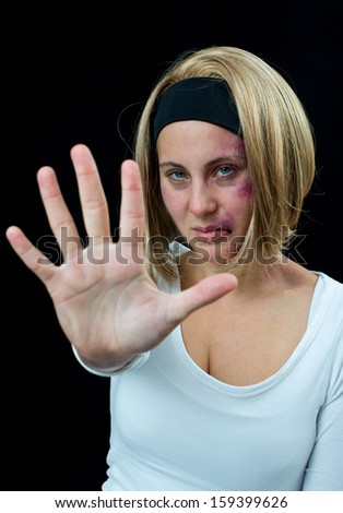 woman with bruises victim of domestic violence or accident face close up - stock photo